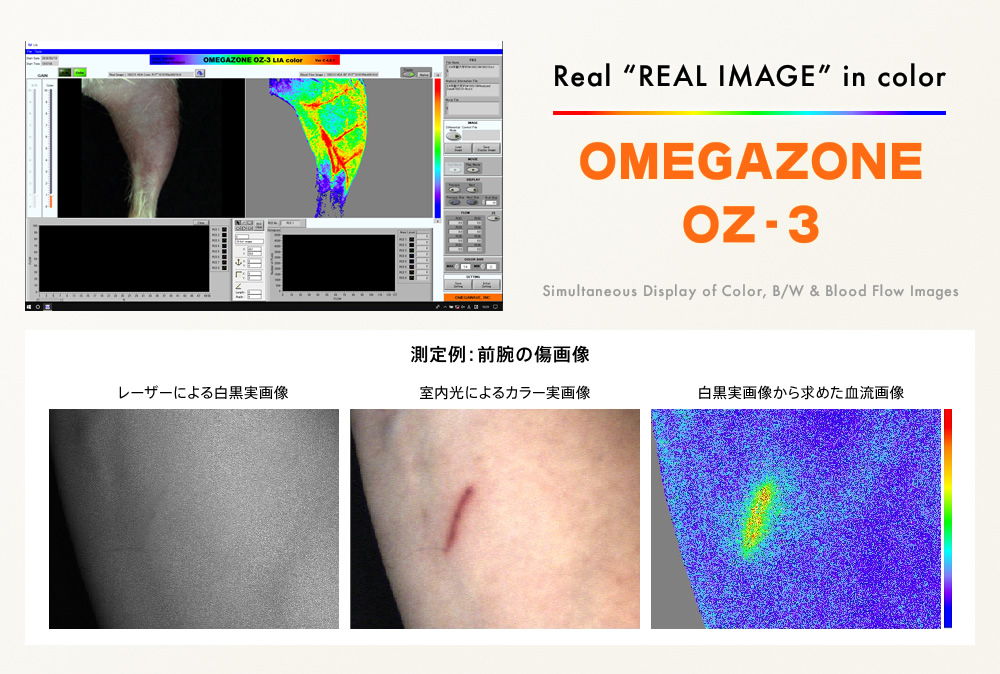 OMEGAZONE OZ-3 2次元レーザー血流画像装置 Simultaneous Display of Color, B/W & Blood Flow Images